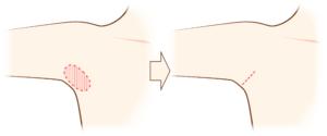 腋臭症手術